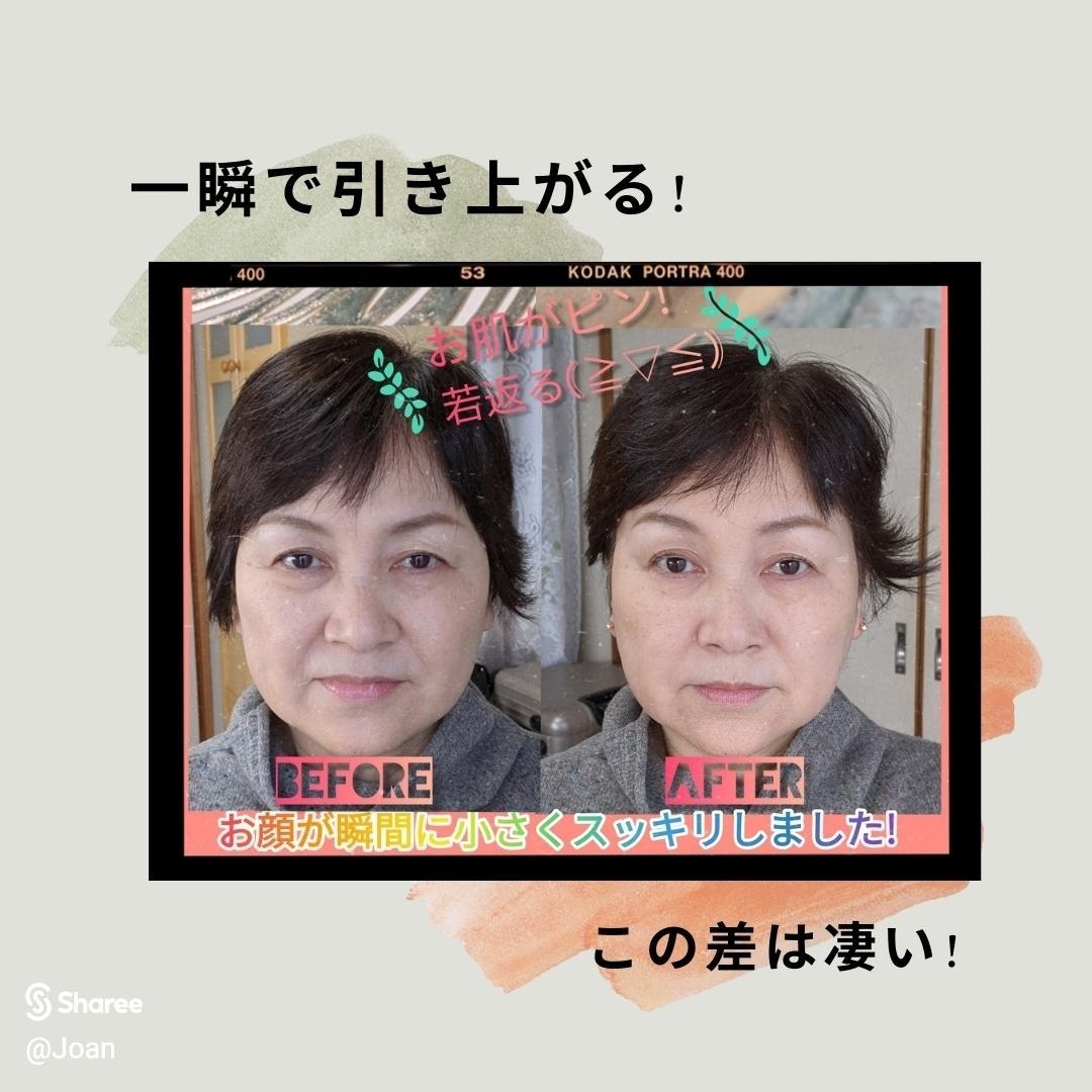 🟪アンチエイジングに特化した耳つぼの画像 (2枚目)