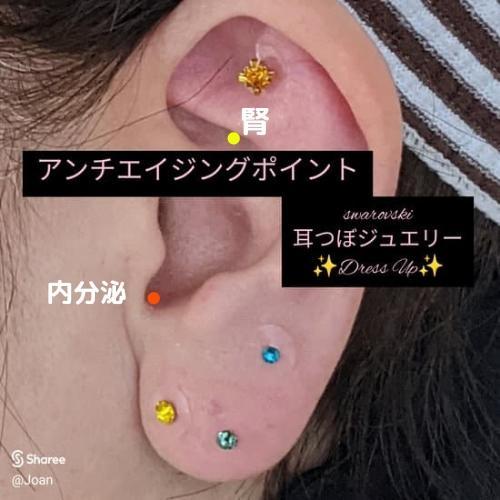 🟪アンチエイジングに特化した耳つぼの画像 (1枚目)