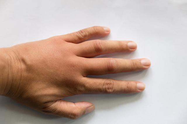 Ursachen für geschwollene Hände - Informationen über